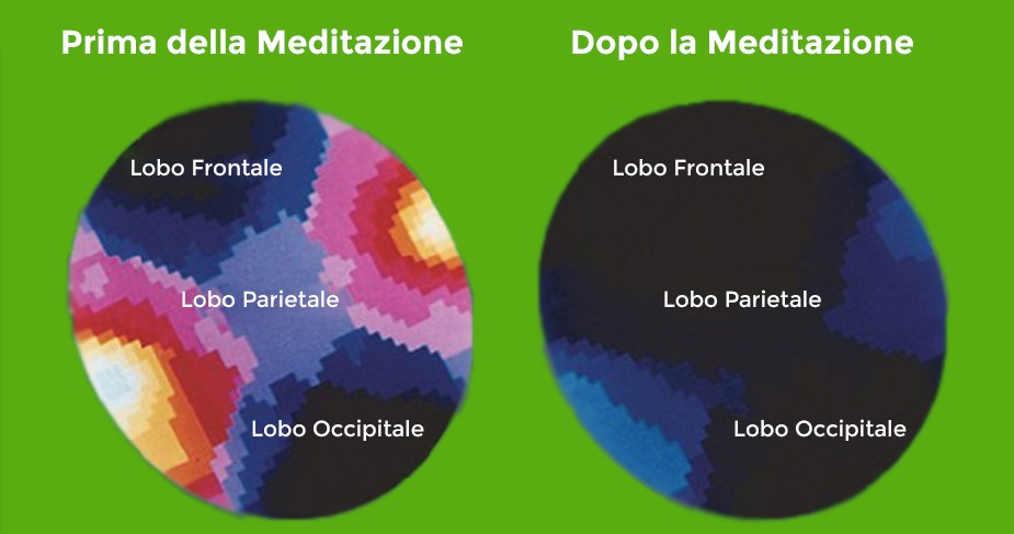 effetti-meditazione